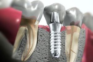 Ilustrovani prikaz implanta